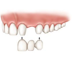 dental bridge arlington tx