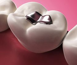 Dental Fillings Arlington