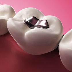 Dental Fillings Arlington