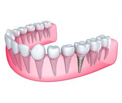 Dental Implants Arlington