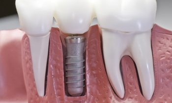 Texas Dental Implant