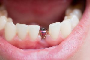 dental implants Dallas