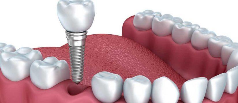 Texas Dental Implant